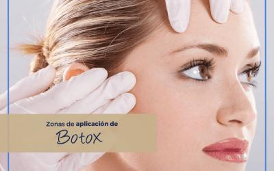 Zonas de Aplicación de Botox